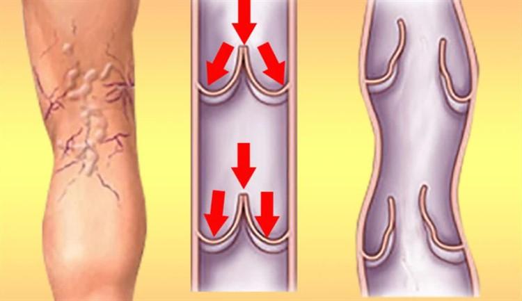 лечение псориаза при гв