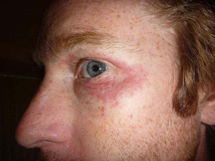 глазной псориаз
