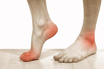 кератодермия ступней
