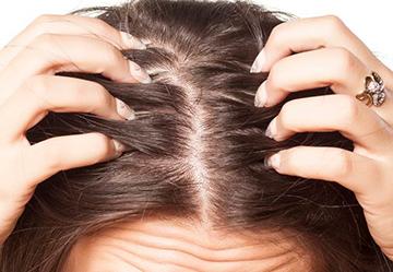 псориаз волосистой части головы